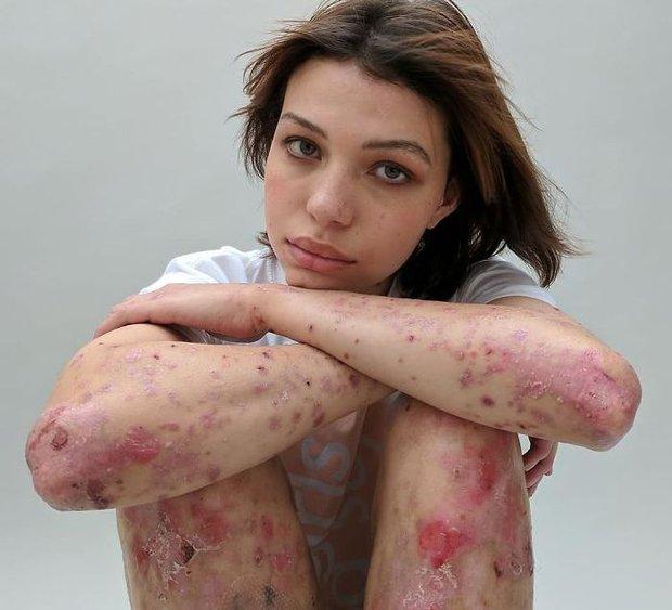 'Behind The Scars - maya Foto: